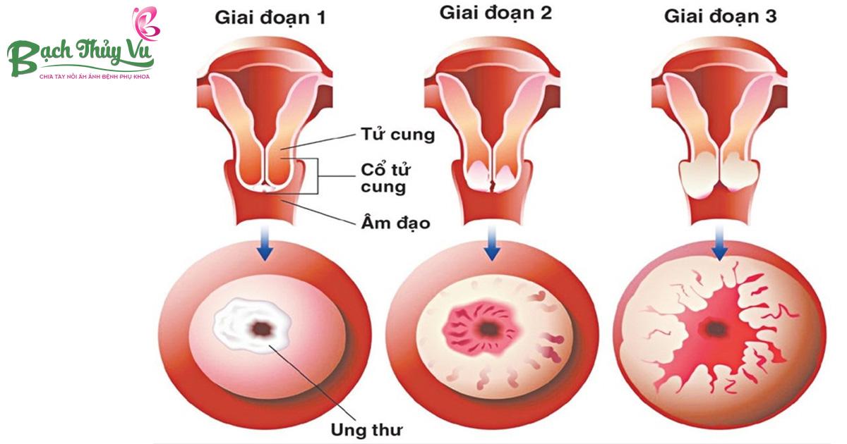 dấu hiệu ung thư tử cung